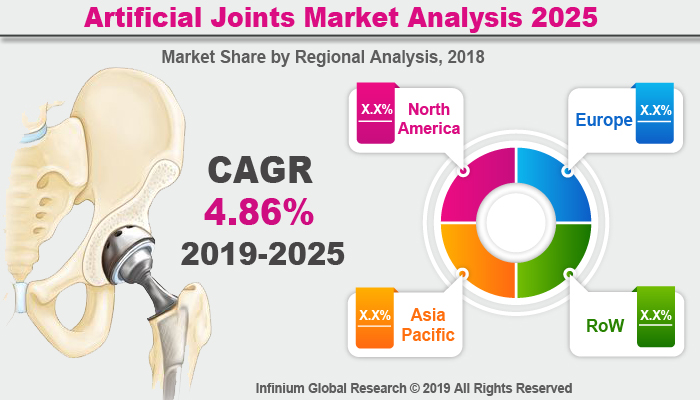 Global Artificial Joints Market