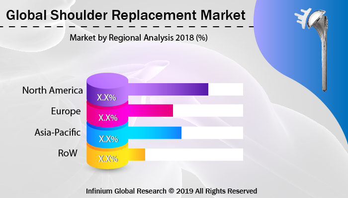 Global Shoulder Replacement Market